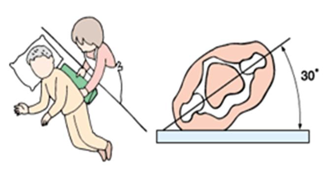「30度側臥位」の画像検索結果